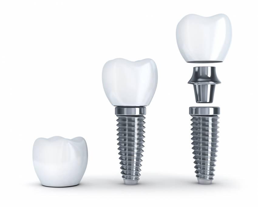 implantes-dentales-valencia-Dr Charani