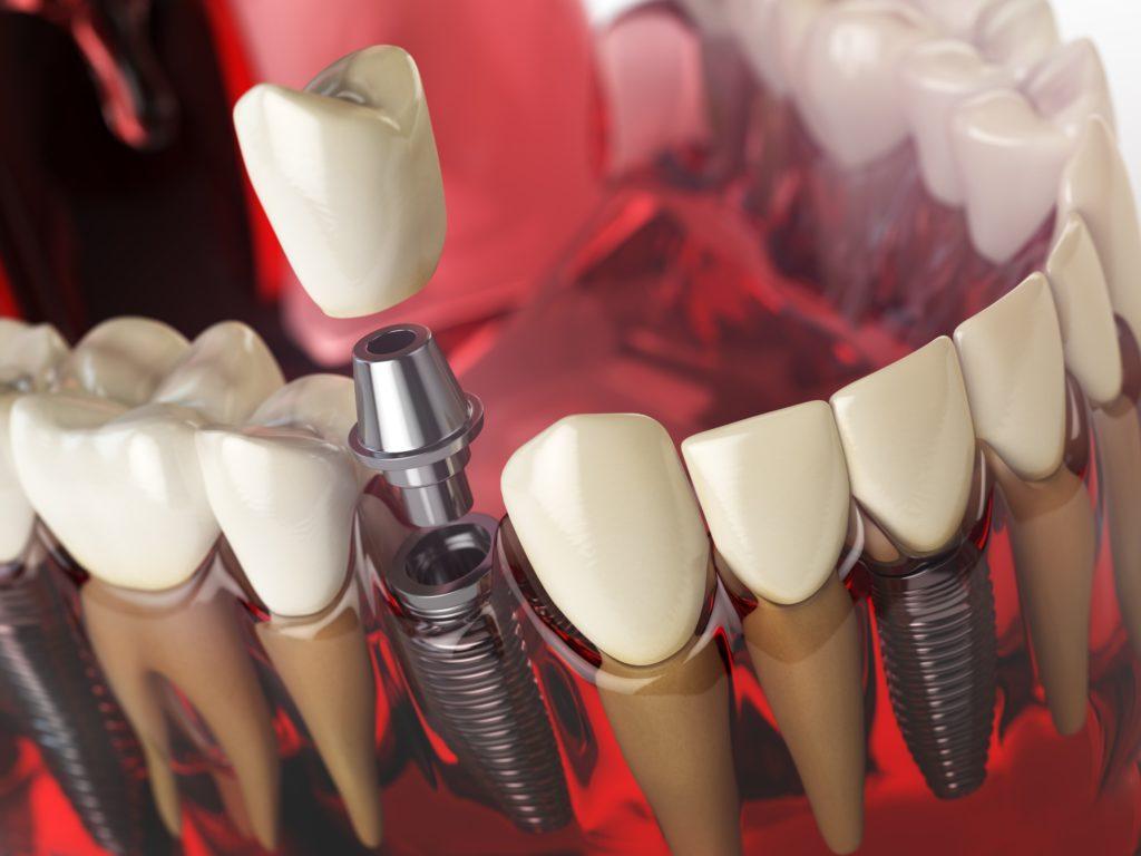 tipos-de-implantes-dentales-valencia